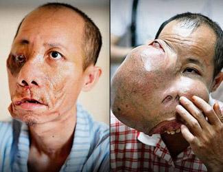 2,5 Kilo-Tumor machte aus Gesicht eine Horror-Fratze